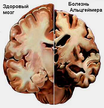 Разработан самый точный тест болезни Альцгеймера