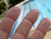 Физики объяснили морщинки на мокрых пальцах
