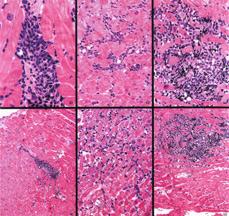 Создан метод ранней диагностики отторжения органа