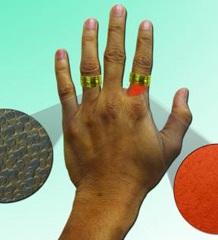Медики придумали нанотехнологическую защиту от аллергии на никель