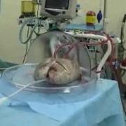 Новое устройство заставило лёгкие дышать вне тела