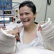 Впервые в мире женщина получила две новые руки
