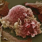 Биологи доказали пользу голодания на клеточном уровне
