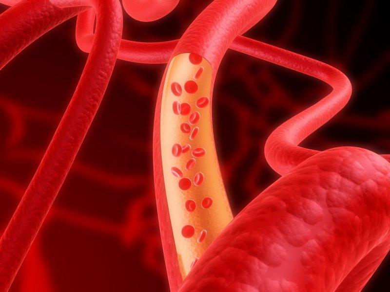 В организме человека обнаружены молекулы, которые могут бороться с атеросклерозом
