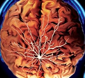 Низкокалорийная диета улучшает работу мозга