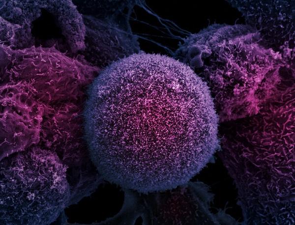 Создан новый тест, позволяющий прогнозировать рак предстательной железы